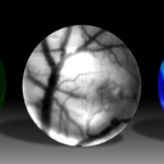 Three different images of the brain are showed from the mini microscope.