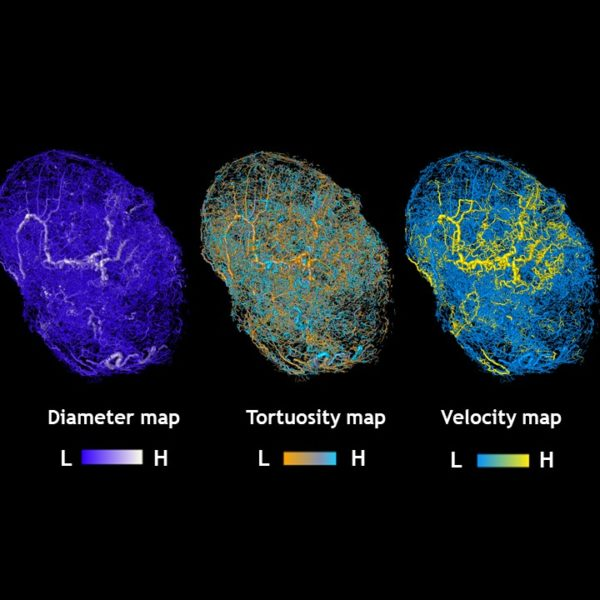 maps of tumors grown in mice.