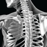 The image shows a computer rendering of a back x-ray.